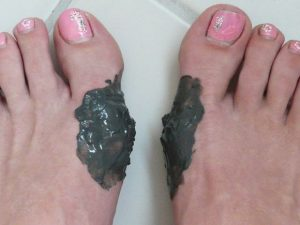 Аппликации при артрозе большого пальца стопы