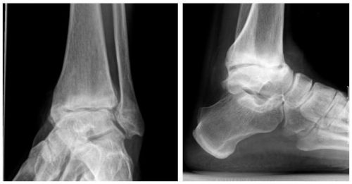 Артрит голеностопа на рентгене