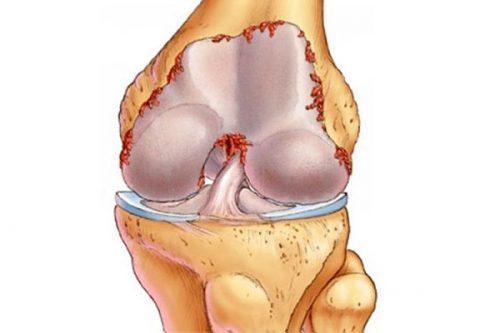 Проблема артрита