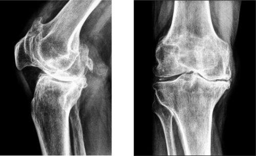 Полиартрит на рентген снимке