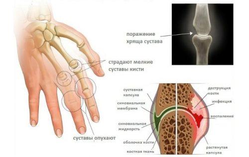 Изменения при артрите пальцев рук
