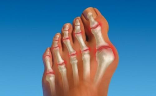 Проблема артрита пальцев ног