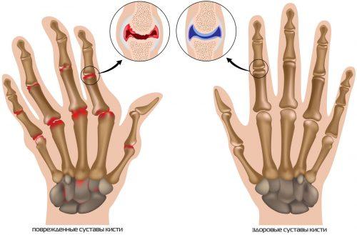 Изменения при артрите суставов пальцев рук