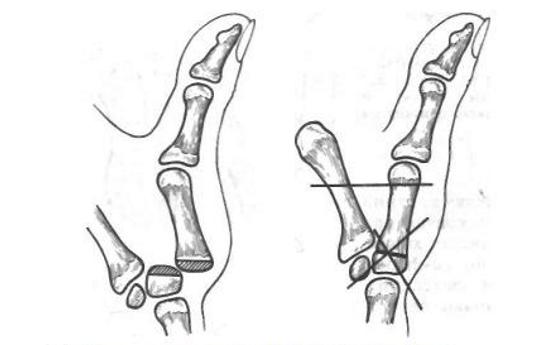 Артродез пальца