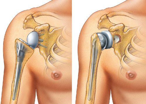 Артропластика плечевого сустава