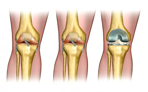 Восстановление сустава артропластикой