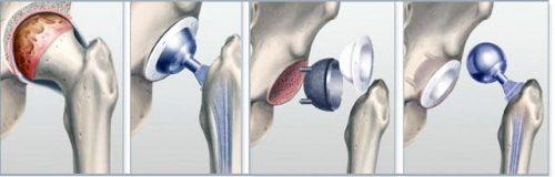 Артропластика тазобедренного сустава