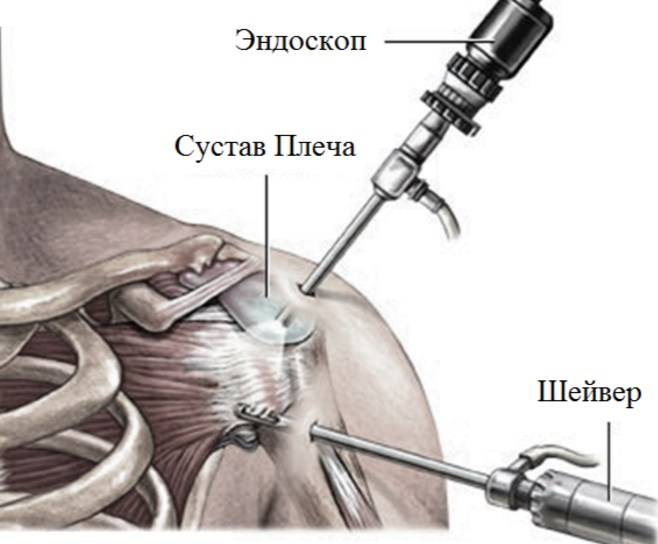 Артроскопическая операция