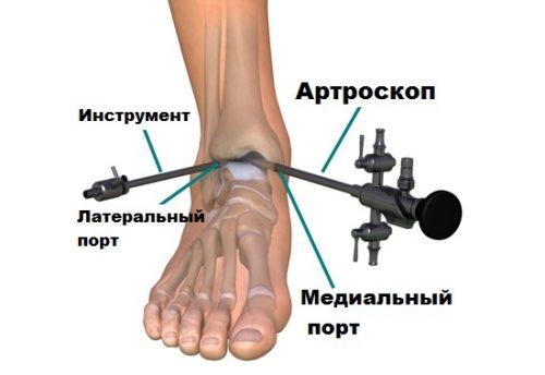 Артроскопия голеностопа