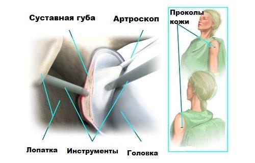 Артроскопия при разрыве Банкарта