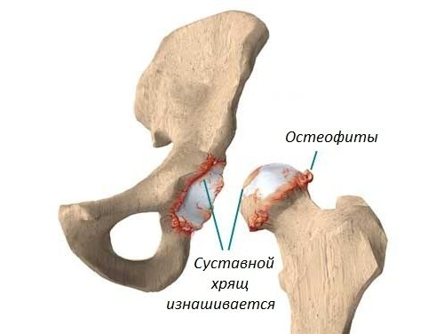 Остеофиты вследствие артроза