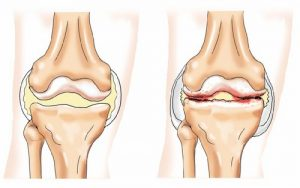 Образование остеофитов при артрозе коленного сустава