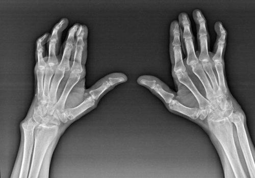 Артроз пальцев рук на рентген снимке