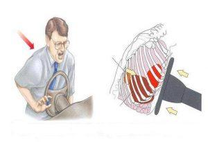 Автомобильная травма грудного отдела