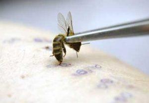 Биопроба на аллергию на пчелиный яд