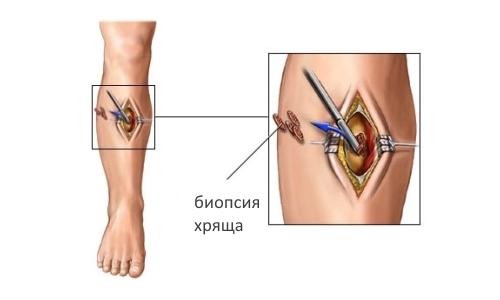 Биопсия хряща