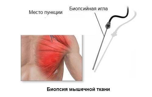 Биопсия мышечной ткани