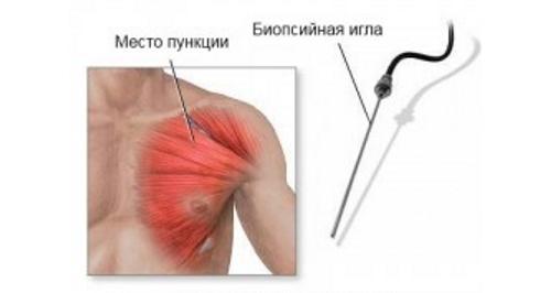 Биопсия мышц