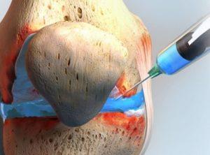Биопсия синовиальной оболочки