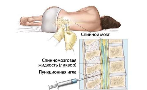 Биопсия спинного мозга
