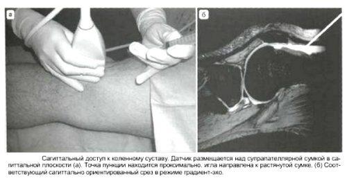 Биопсия внутрисуставной жидкости коленного сустава