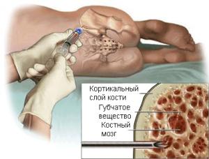 Биопсия опухоли позвоночника