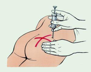 Обезболивающая блокада при боли в седалищнои нерве