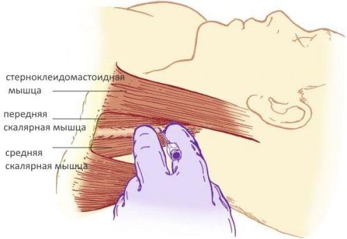 Блокада боли мышц шеи инъекциями