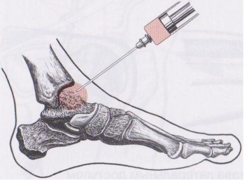 Блокада голеностопного сустава