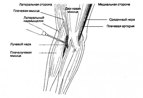 Блокада лучевого нерва