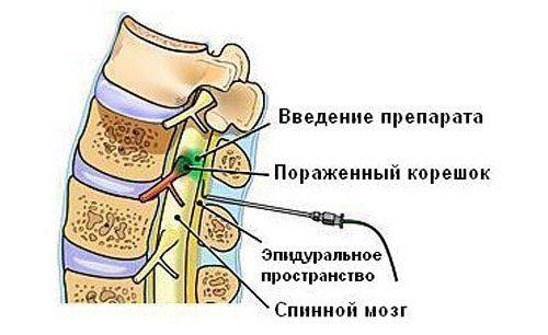 Блокада боли при люмбоишиалгии