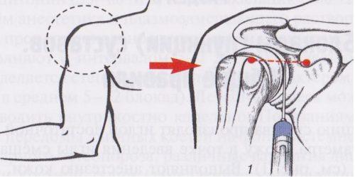 Блокада боли плечевого сустава