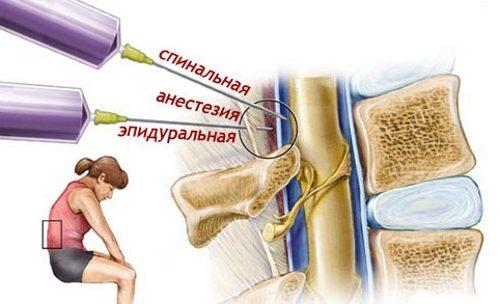 Блокада боли при стенозе позвоночного канала