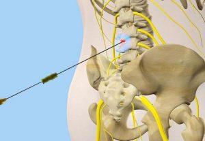 Обезболивающая блокада нерва спины