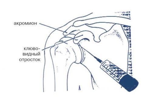 Пункция плечевого сустава для блокады воспаления при полиартрите