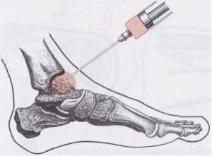 Блокада боли голеностопного сустава