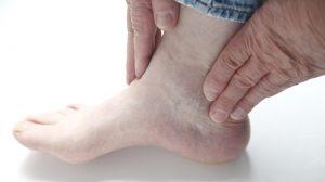 Боль в голеностопе при артрите