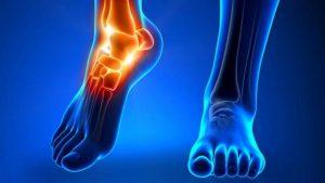 Боль в голеностопном суставе при артрите