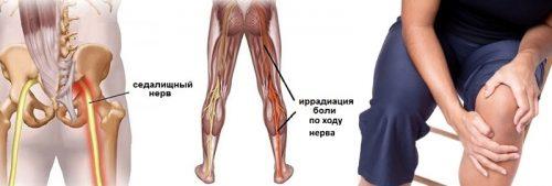 Боль в колене при защемлении нерва