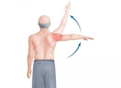 Возникновение боли в плече при поднятии руки