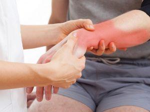 Боль в руке при растяжении