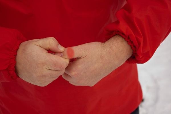 Возникновение боли в суставе большого пальца