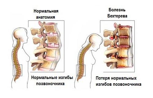 Болезнь Бехтерева — спондилоартрит