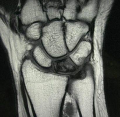 Болезнь Кинбека на МРТ снимке