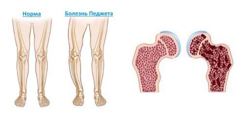 Разрушение костей при болезни Педжета