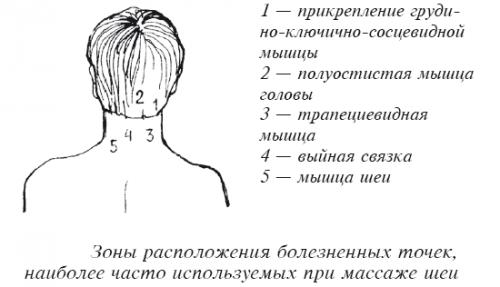 Болезненные точки при массаже шеи