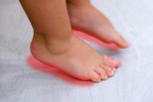 Боли в ножках при плоскостопии