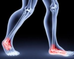 Боли в области пяточной кости