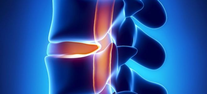 Что такое дорзальная грыжа диска, симптомы и лечение