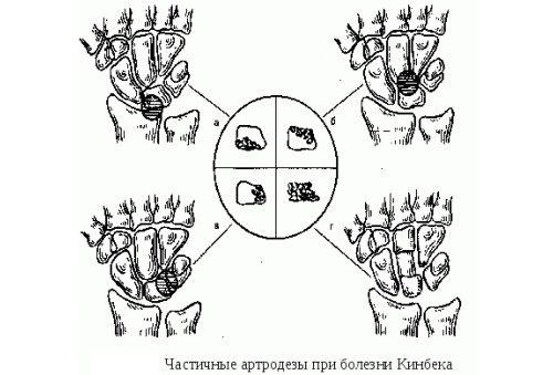 Частичные артодезы при болезни Кинбека